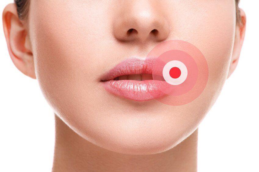 Kokosöl bei Lippen-Herpes