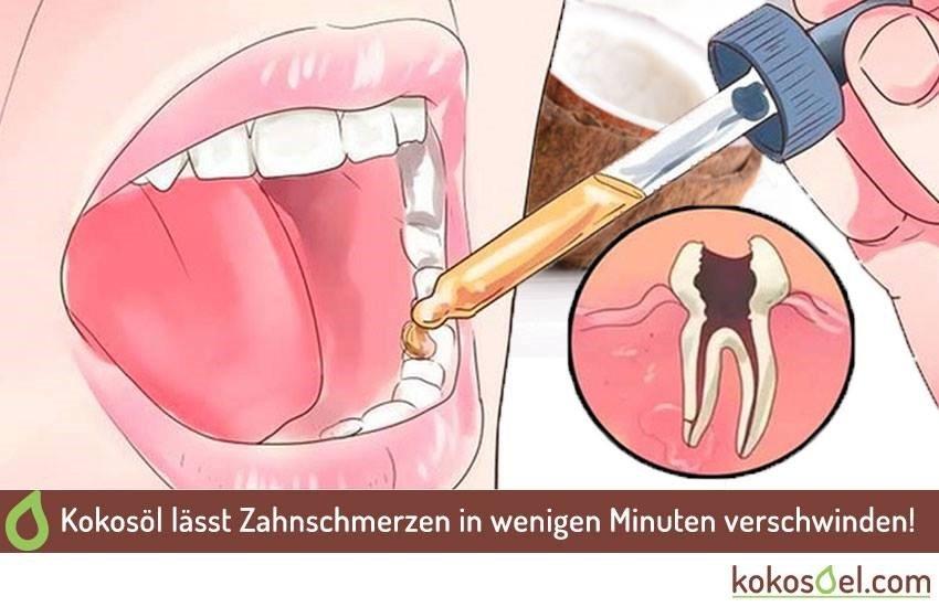 Kokosöl bei Zahnschmerzen