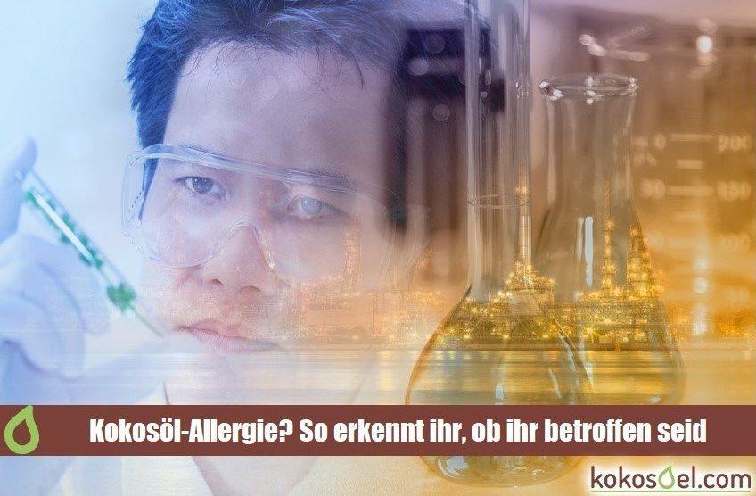 Kokosöl allergie